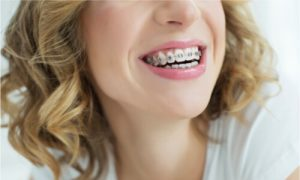 usage of braces for fixing overbite