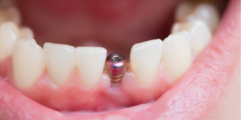 medicare and dental implants